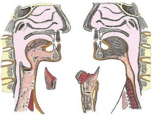 Diferencia Traqueotomia / Traqueostomia