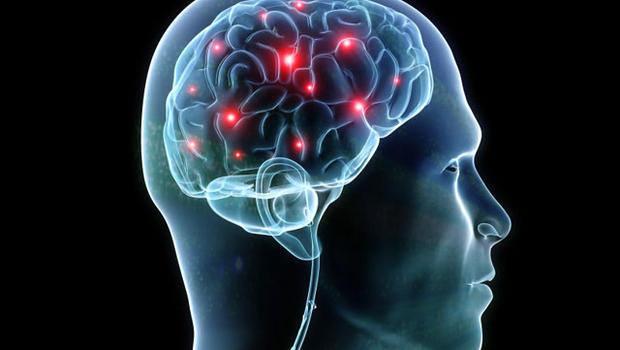 cerebro-aeeorl