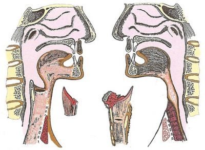 traqueotomia-traqueostomia-aeeorl